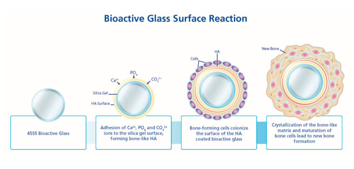 Bioglass_Surface_Reaction